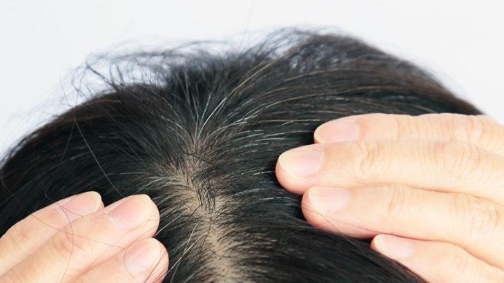 30代半ばからの女性のお悩みに髪萌カラートリートメント